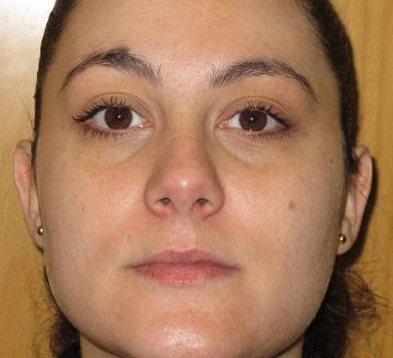 Tratamiento de manchas y grasa en la cara