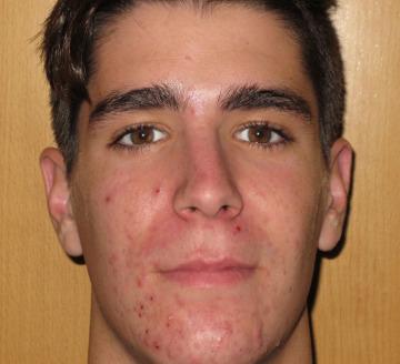 Eliminar acné severo y cicatrices residuales