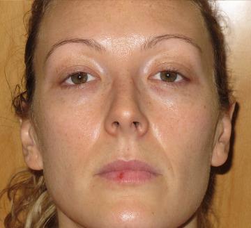 Pigmentación facial, pecas