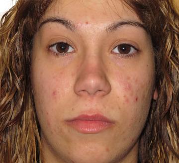 Tratamiento acné, granos y cicatrices
