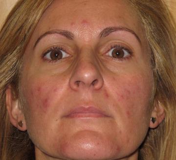 Tratamiento de acné rosácea