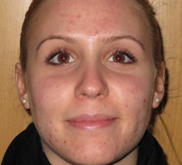 Tratamiento de grasa, granos y cicatrices acné