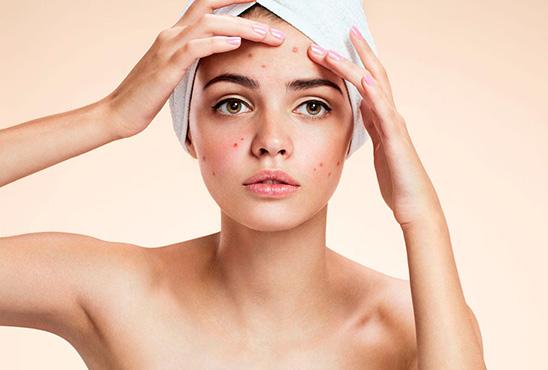 Piel grasa - acnéica
